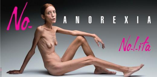 Nolita No-Anorexia: L'ultimo cazzotto di Toscani