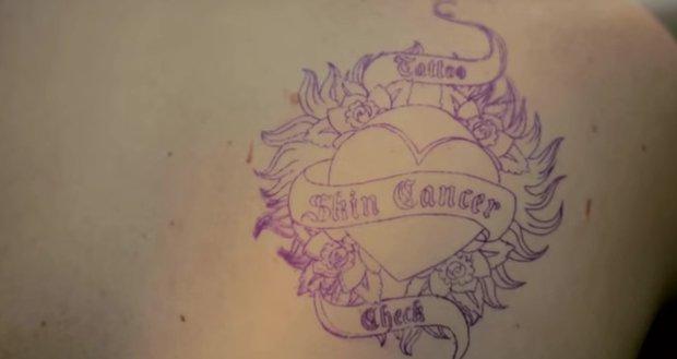 I tatuatori possono salvarti dal cancro della pelle [VIDEO]