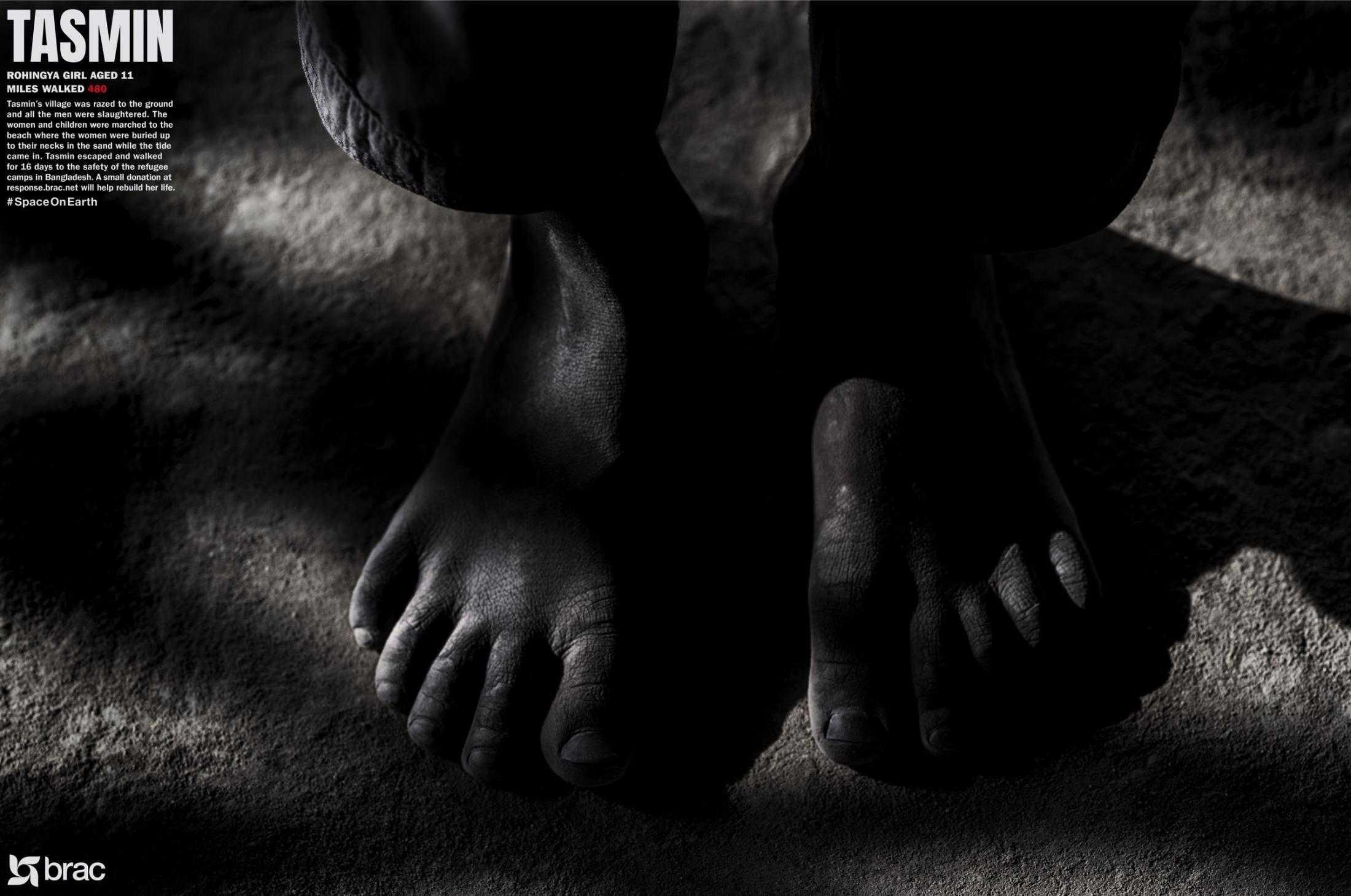 feet_r14_brac2_thumb