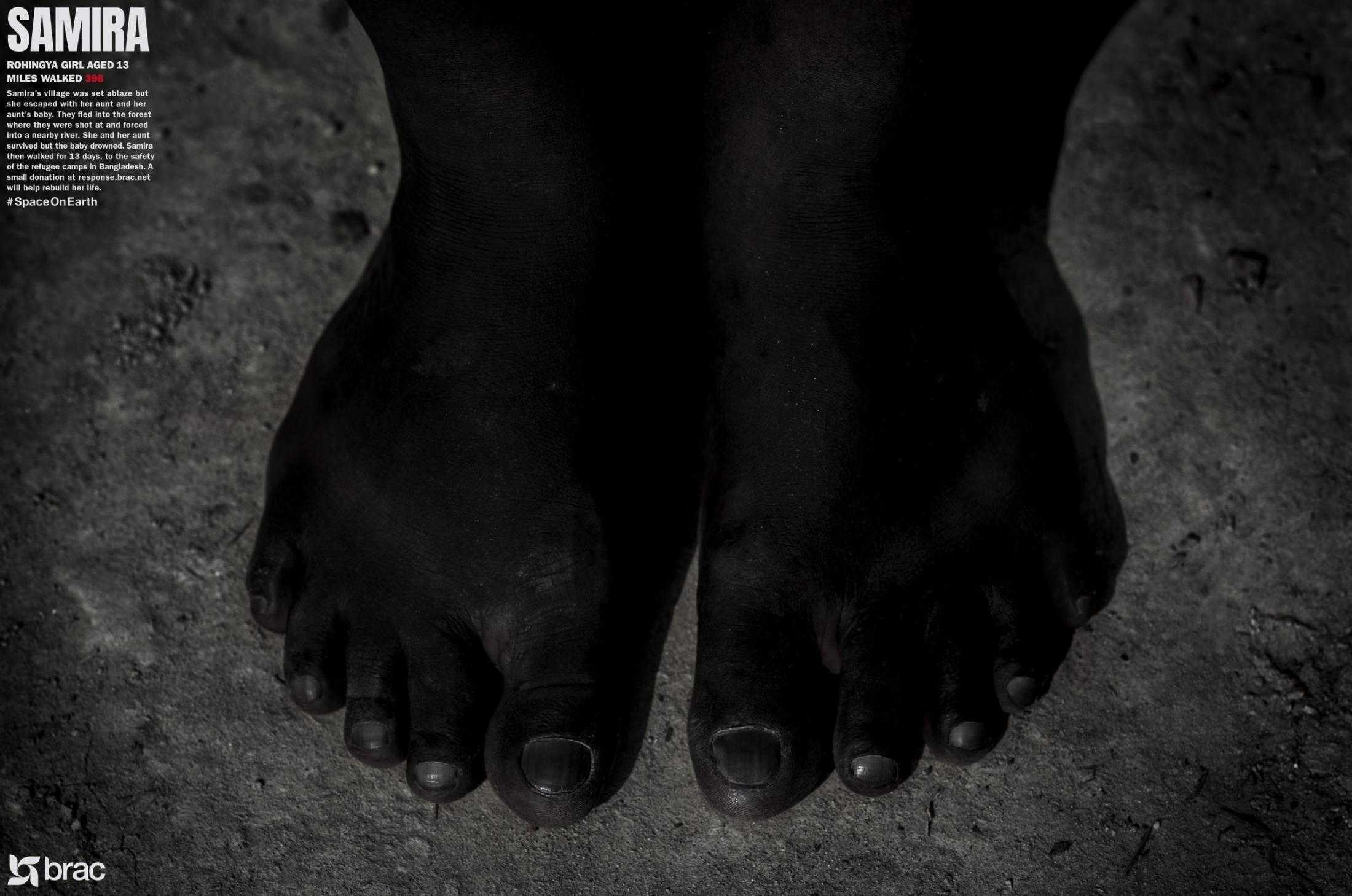 feet_r14_brac4_thumb