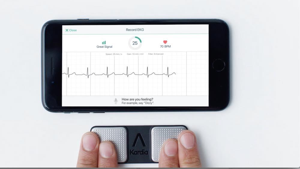 tecnologia-medica-elettrocardiogramma-alivecor